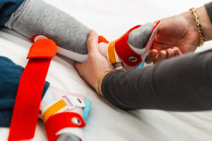 Orthotics and Prosthesis